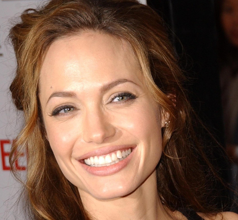 Angelina Jolie - PRP Face