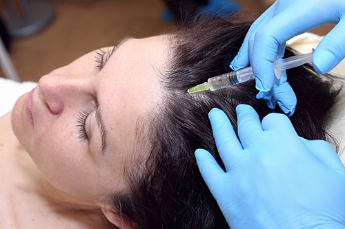 PRP Injections - Hair Loss - Woman