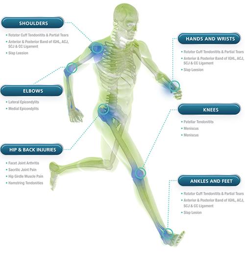 Sports Medicine PRP